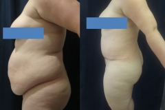 ABDOMINOPLASTIA O LIPECTOMIA 1.2