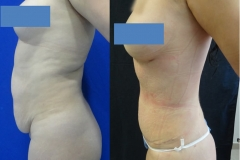 ABDOMINOPLASTIA O LIPECTOMIA 2.1