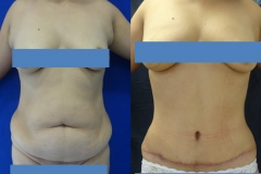 ABDOMINOPLASTIA O LIPECTOMIA 3.2