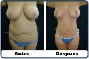 HdV10 clinica colombiana de obesidad