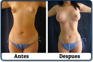 HdV12 clinica colombiana de obesidad