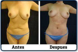 HdV13 clinica colombiana de obesidad