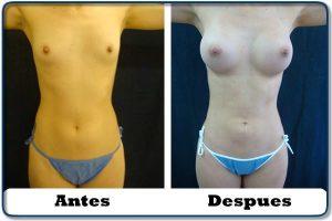 HdV21 clinica colombiana de obesidad