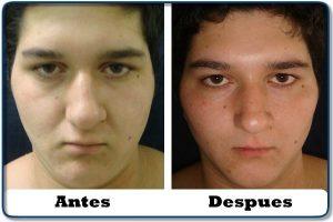 HdV16 clinica colombiana de obesidad