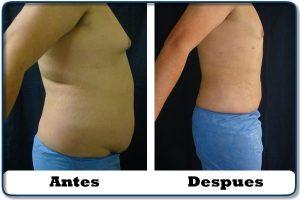 HdV17 clinica colombiana de obesidad