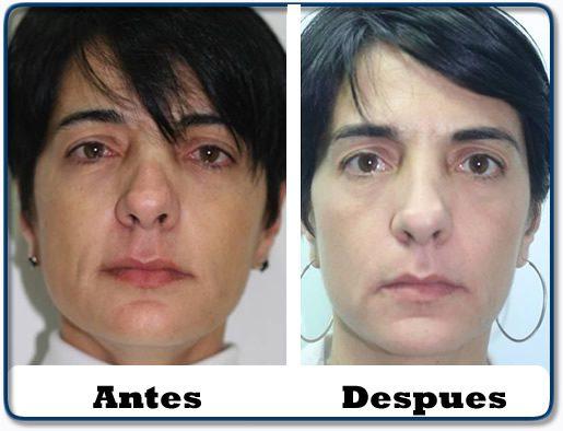 HdV19 clinica colombiana de obesidad