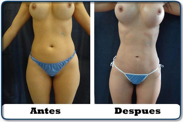HdV24 clinica colombiana de obesidad