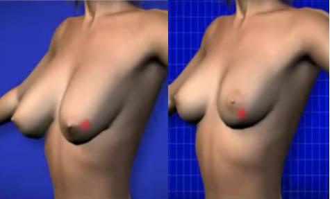 senos-grandes-clinica-obesidad