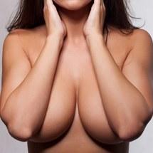 Mamoplastia de Aumento