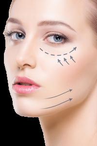 Rejuvenecimiento Facial Clínica Obesidad